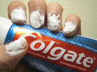 nail-whitening-attempt-grillednails-yellowing-nails-polish-base-coat.jpg